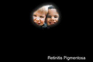 Simulation of what someone with retinitis pigmentosa might see